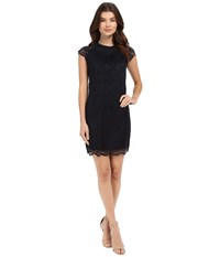 Only Shira Cap Sleeve Woven Lace Dress Night Sky Women's Dress Blue