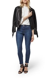Women's Topshop 'Leigh' High Rise Crop Skinny Jeans