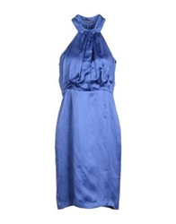 Dinou 3 4 Length Dresses Blue