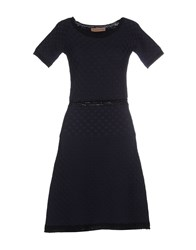 Vicedomini Dresses Short Dresses Women Dark Blue