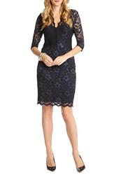 Karen Kane Women's Scalloped Lace V Neck Dress Navy