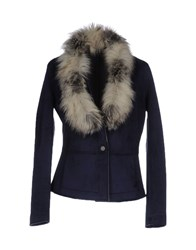Fornarina Coats And Jackets Jackets Dark Blue