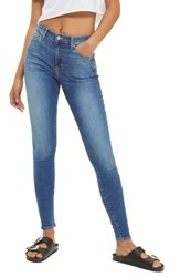 Topshop Women's Leigh Ankle Skinny Jeans Mid Denim