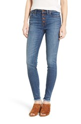 Madewell Women's High Rise Skinny Jeans Button Through Edition