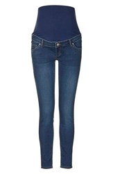 Women's Topshop 'Joni' Ankle Maternity Jeans