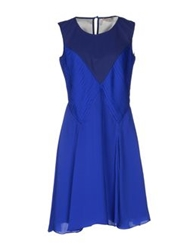 Bgn Short Dresses Bright Blue